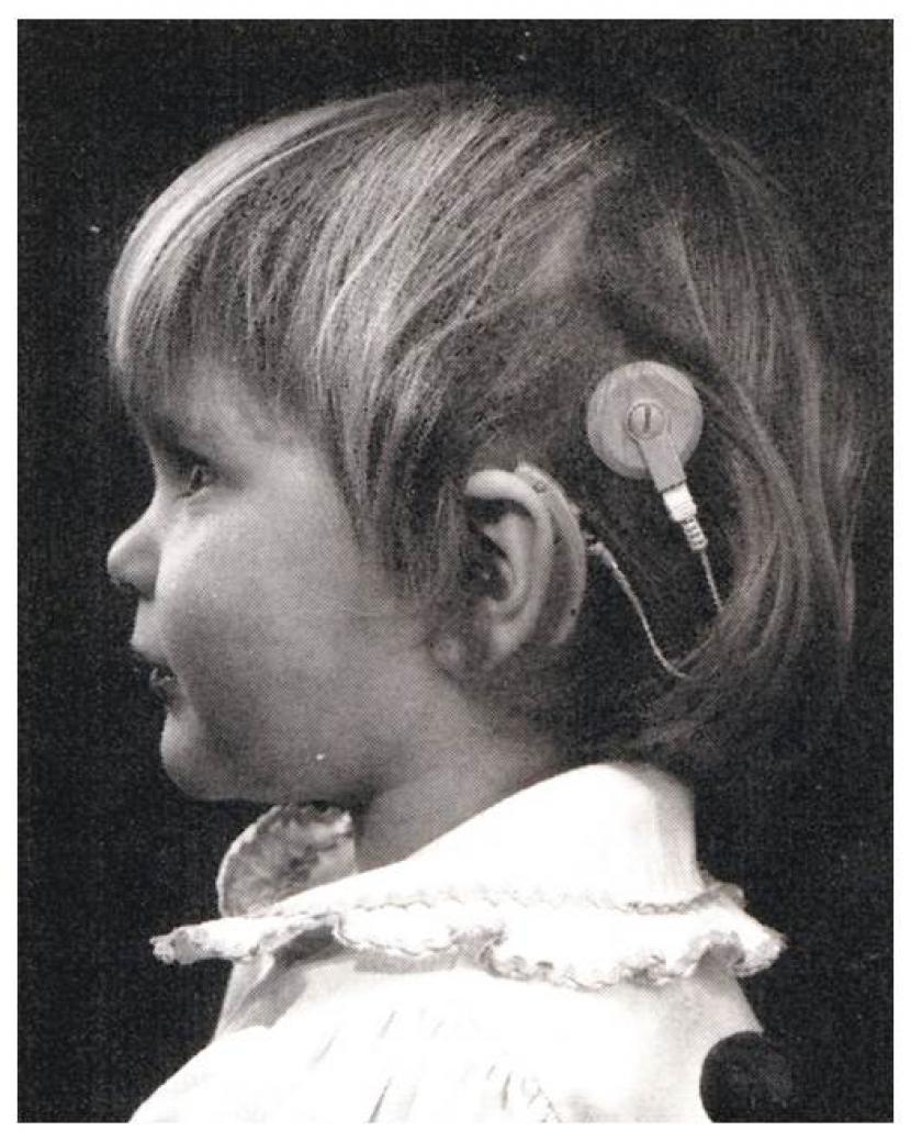 Ein Kind mit Hinter-dem-Ohr Audioprozessor